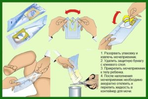 Использование мочеприемника для детей